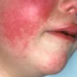 Особенно опасные симптомы аллергической сыпи