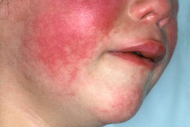 аллергия отек лица что делать