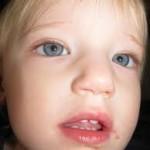 Герпетическая ангина  у детей лечение