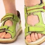 Дефекты стопы у ребенка